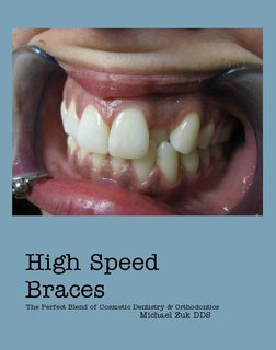 High Speed Braces